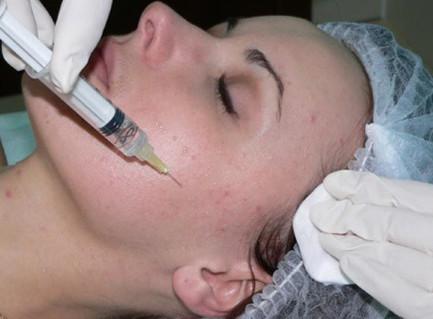 mezoterapiya-ot-ugrrevoy-syipi