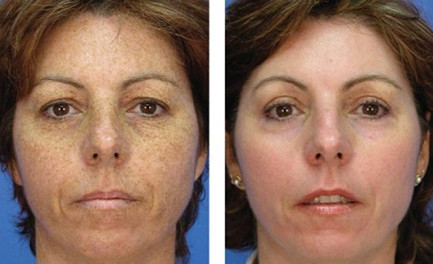 pigmentaciya-na-lice-foto-do-i-posle