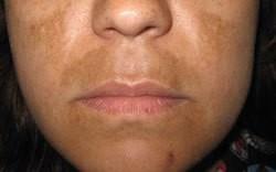 pigmentaciya-na-lice-hloazmy