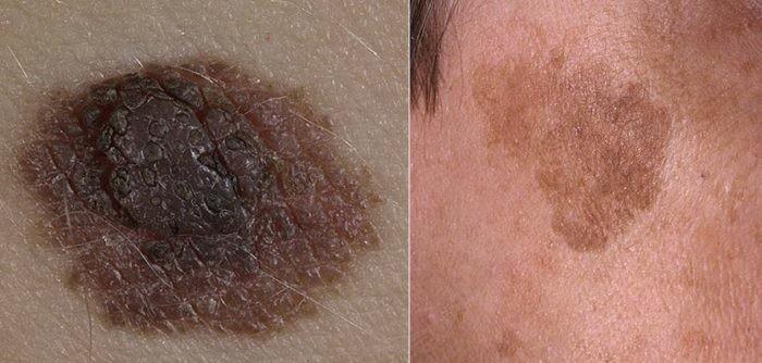 pigmentaciya-na-lice-nevus-lentigo-700x334
