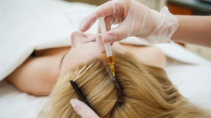 Мезотерапія волосся