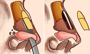 rinoplastika-udalenie-gorbinki